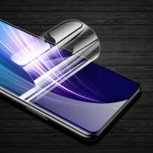 Гидрогелевая защитная плёнка для смартфона Xiaomi Redmi Note 8, в комплект входят 2 плёнки, бронированная плёнка, полноэкранная плёнка (закрывает экран смартфона полностью), клеится к экрану смартфона всей поверхностью, клеится без использования жидкости, самовосстанавливающаяся плёнка, не влияет на чувствительность сенсора, не искажает цвета, олеофобное покрытие, пластиковый держатель для точного позиционирования плёнки на экране, шпатель для разглаживания плёнки, Киев